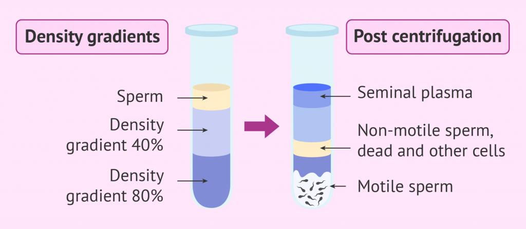 infertilita' maschile test di capacitazione